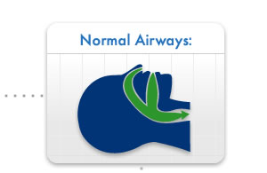 Normal Airways